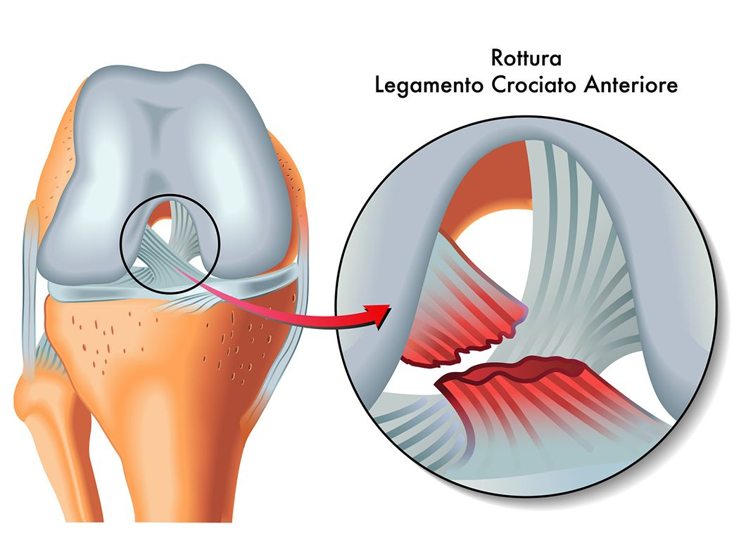 Operación y rehabilitación del ligamento cruzado anterior, ese gran ...